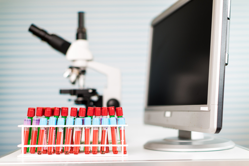 Top Facts About Metabolic Testing: How to Prepare?